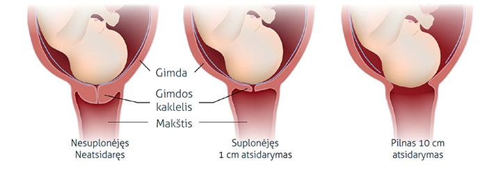 Nėštumo metu gimdos kaklelis užkimštas gleivių kamščiu